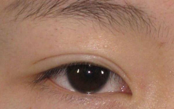 做消除肿眼泡失败修复怎么样?好吗?
