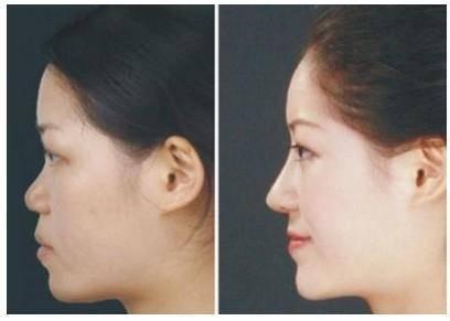 做宽鼻矫正怎么样?好吗?