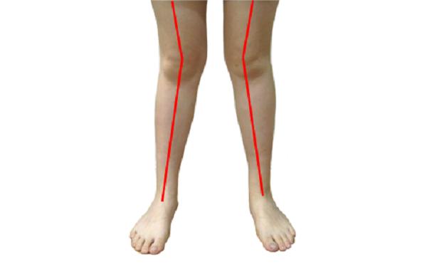 做x型腿矫正怎么样?好吗?
