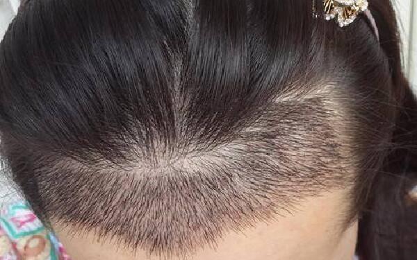 做头发种植怎么样?好吗?