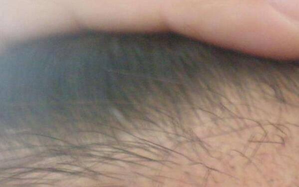 做FUT种植头发怎么样?好吗?