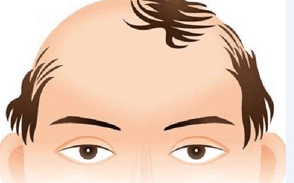 做秃顶植发怎么样?好吗?