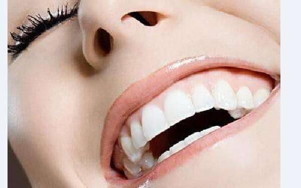 做牙齿美白怎么样?好吗?