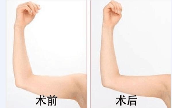 做瘦手臂怎么样?好吗?