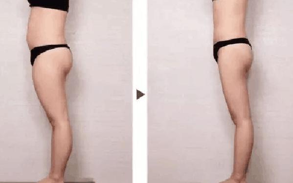 做超声吸脂瘦大腿怎么样?好吗?