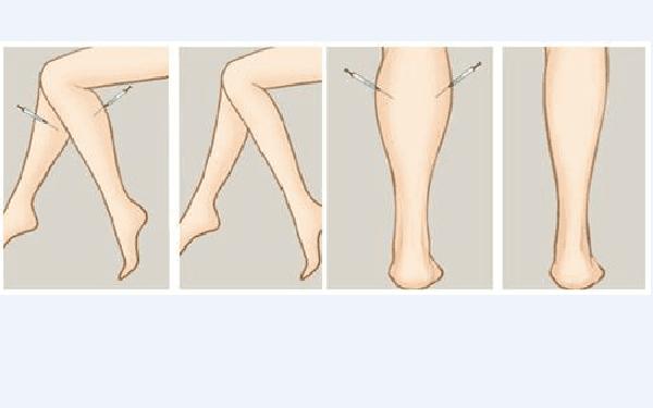 做瘦小腿怎么样?好吗?