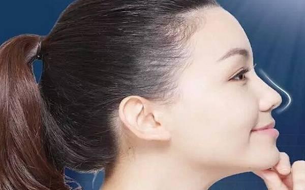 做软骨整形矫正短鼻怎么样?好吗?