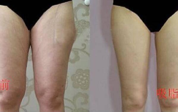 做共振吸脂瘦小腿怎么样?好吗?