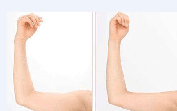 做超声吸脂瘦手臂怎么样?好吗?
