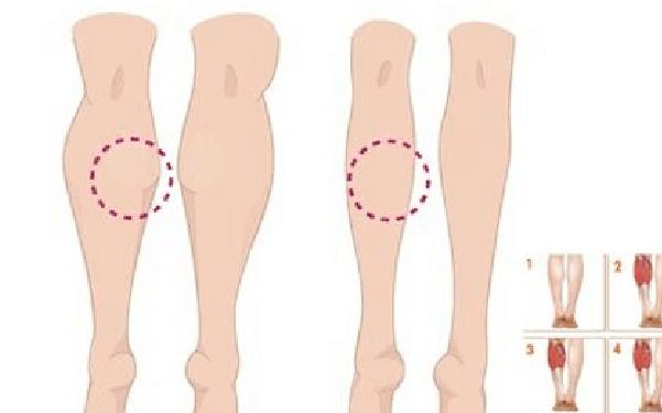 做小腿腓肠肌阻断术怎么样?好吗?