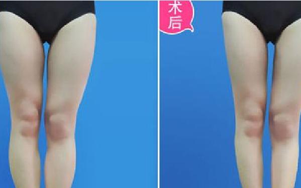 做瘦大腿怎么样?好吗?