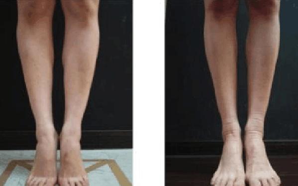 做射频瘦小腿怎么样?好吗?