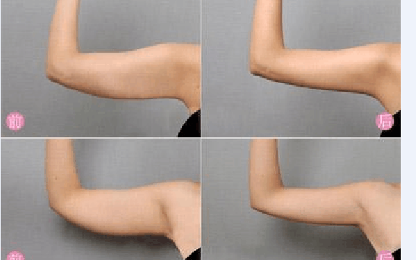 做溶脂瘦手臂怎么样?好吗?