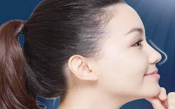 做垫鼻尖失败修复怎么样?好吗?