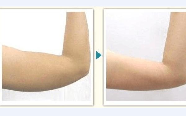 做吸脂瘦手臂怎么样?好吗?
