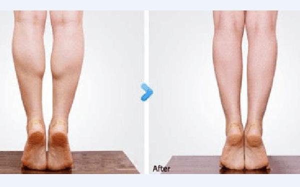 做小腿神经阻断术怎么样?好吗?