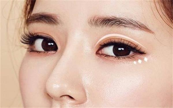做韩式三点双眼皮的流程是什么?恢复时间要多久?