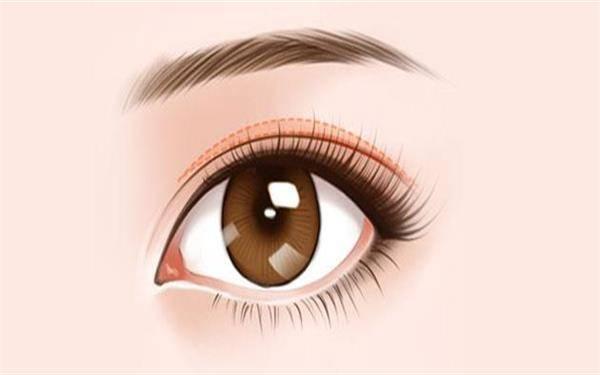 做双眼皮修复的流程是什么?恢复时间要多久?