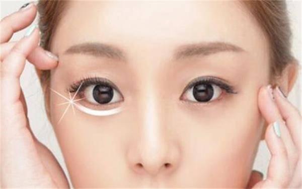 做全切法去眼袋的流程是什么?恢复时间要多久?