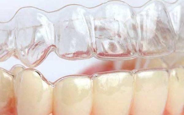 做牙齿矫正需要多长时间?全过程解析