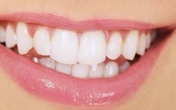 做牙齿抛光需要多长时间?全过程解析