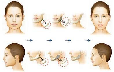 做下颌角截骨治疗效果怎么样?效果保持时间多久?