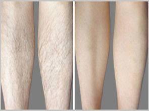 做小腿激光脱毛治疗效果怎么样?效果保持时间多久?