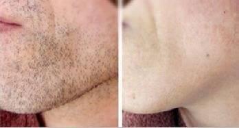 做络腮胡脱毛治疗效果怎么样?效果保持时间多久?