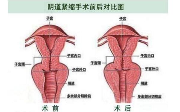 做阴道紧缩治疗效果怎么样?效果保持时间多久?