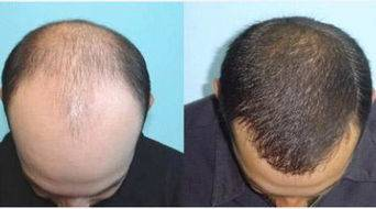做秃顶植发治疗效果怎么样?效果保持时间多久?