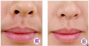 做脱唇毛治疗效果怎么样?效果保持时间多久?
