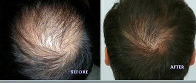 做FUE种植头发治疗效果怎么样?效果保持时间多久?