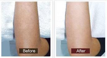 做手臂脱毛治疗效果怎么样?效果保持时间多久?
