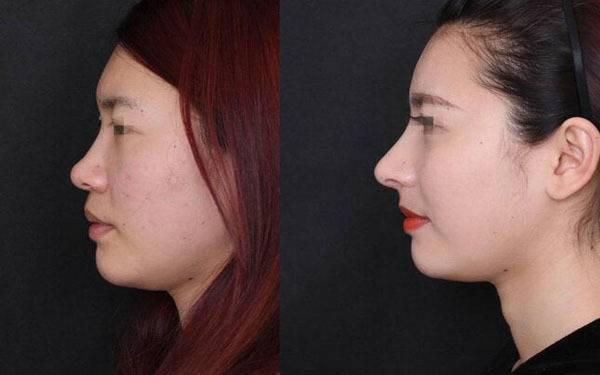 做硅胶延长鼻小柱治疗效果怎么样?效果保持时间多久?