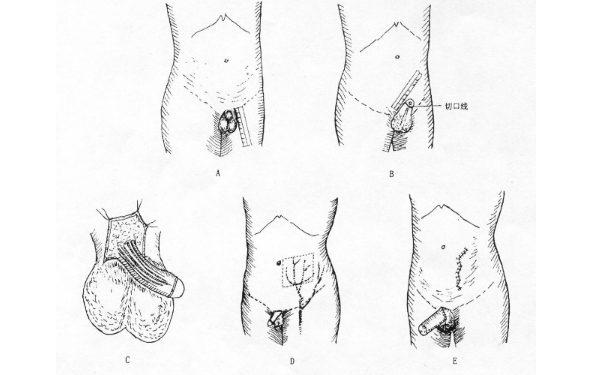 做阴茎粘连修复治疗效果怎么样?效果保持时间多久?