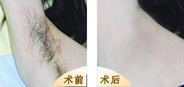 做激光脱腋毛治疗效果怎么样?效果保持时间多久?