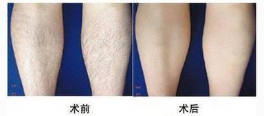 做大腿激光脱毛治疗效果怎么样?效果保持时间多久?