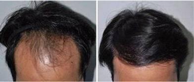 做自体毛发移植治疗效果怎么样?效果保持时间多久?