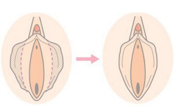 做阴蒂体切除治疗效果怎么样?效果保持时间多久?