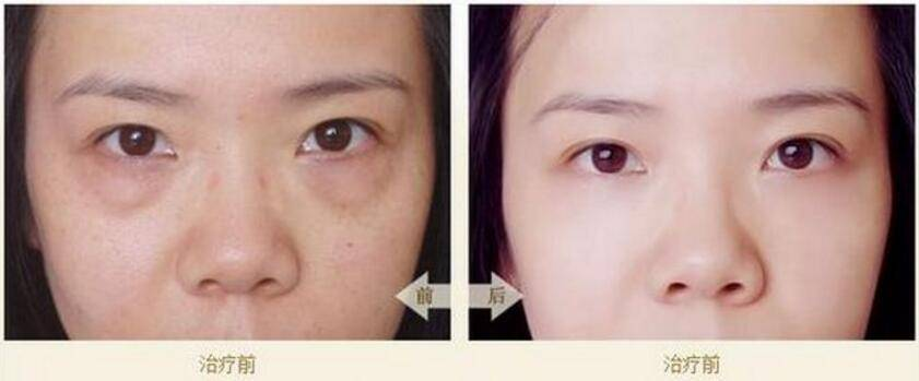 做去眼袋治疗效果怎么样?效果保持时间多久?