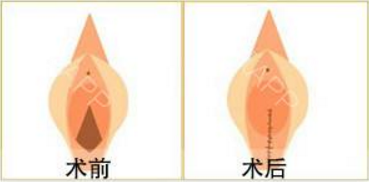做阴唇漂红治疗效果怎么样?效果保持时间多久?