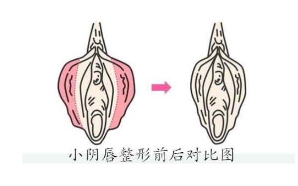 做小阴唇整形术治疗效果怎么样?效果保持时间多久?