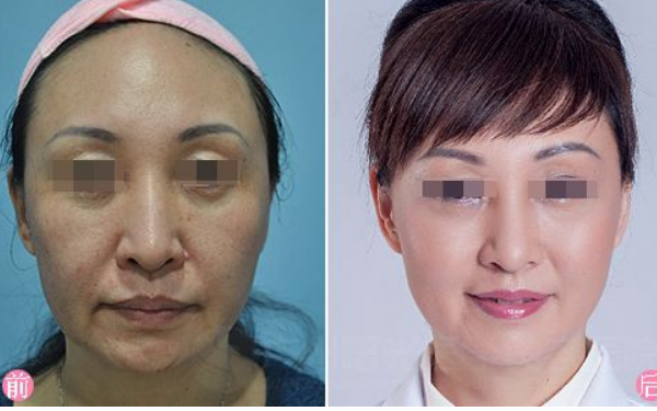 做激光美容治疗效果怎么样?效果保持时间多久?