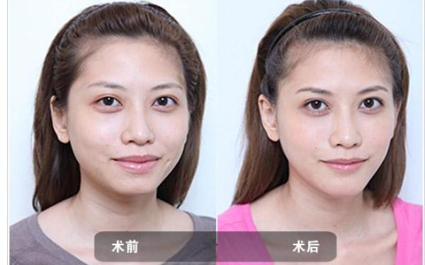 做去唇角纹治疗效果怎么样?效果保持时间多久?
