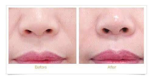 做纹唇治疗效果怎么样?效果保持时间多久?