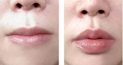 做嘟嘟唇整形治疗效果怎么样?效果保持时间多久?