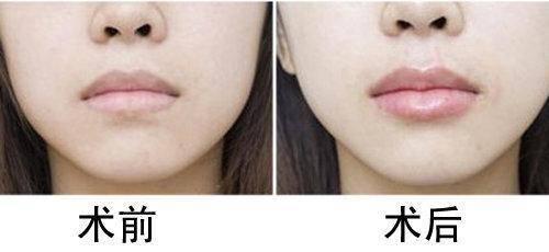 做胶原蛋白丰唇治疗效果怎么样?效果保持时间多久?