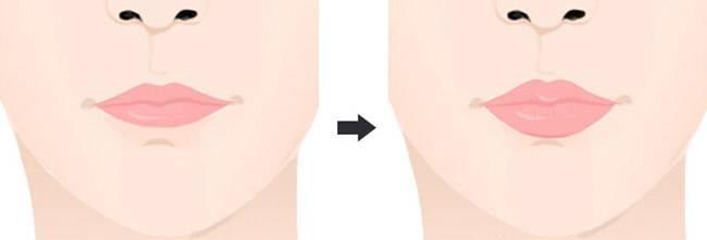 做自体脂肪丰唇治疗效果怎么样?效果保持时间多久?
