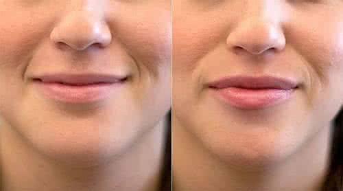 做玻尿酸丰唇治疗效果怎么样?效果保持时间多久?