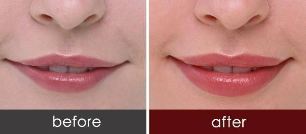 做丰唇治疗效果怎么样?效果保持时间多久?